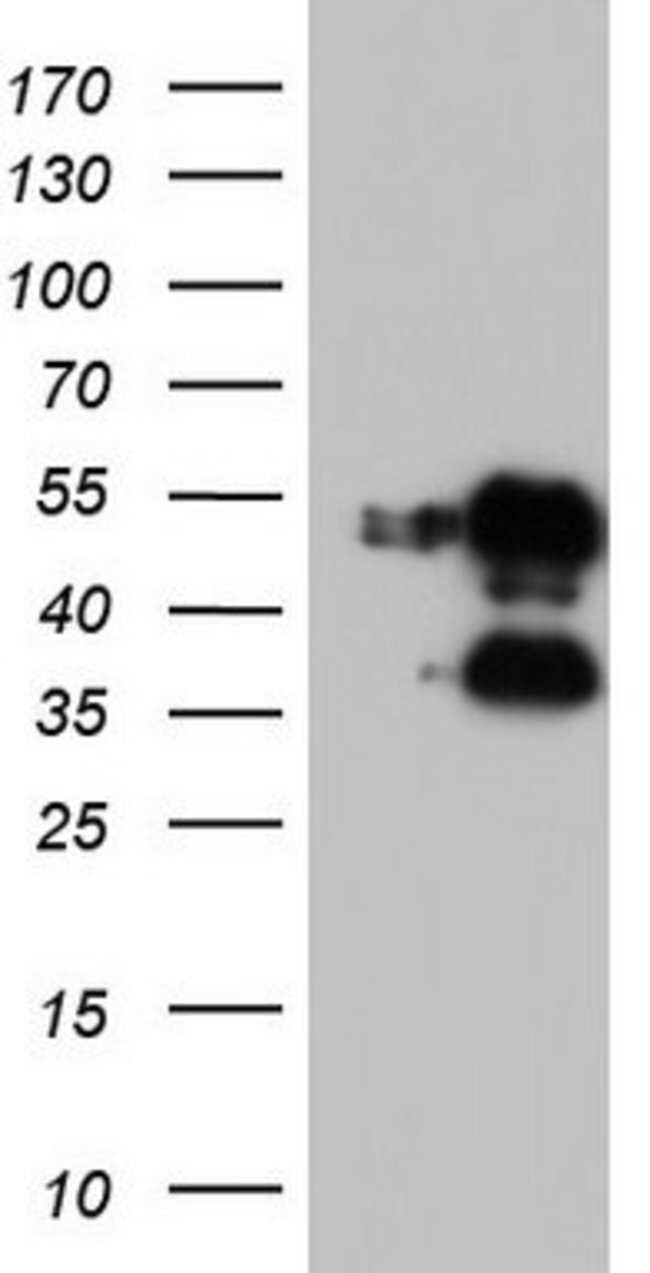 FOSB Mouse anti-Human, Clone: OTI2A1, lyophilized, TrueMAB  100 µg;