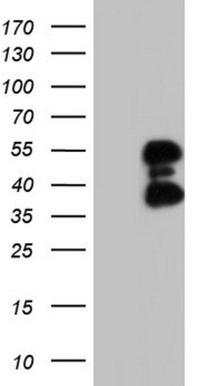 FOSB Mouse anti-Human, Clone: OTI5D5, lyophilized, TrueMAB  100 µg;