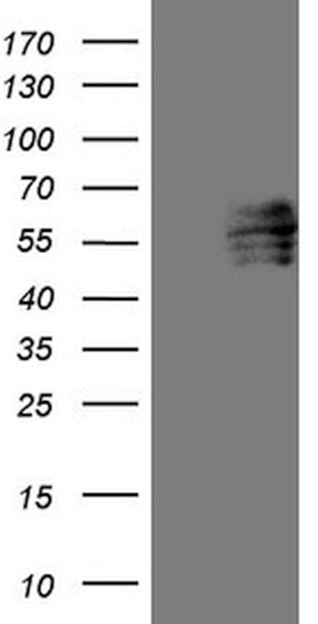 FOXC2 Mouse anti-Human, Clone: OTI3E3, lyophilized, TrueMAB  100 µg;