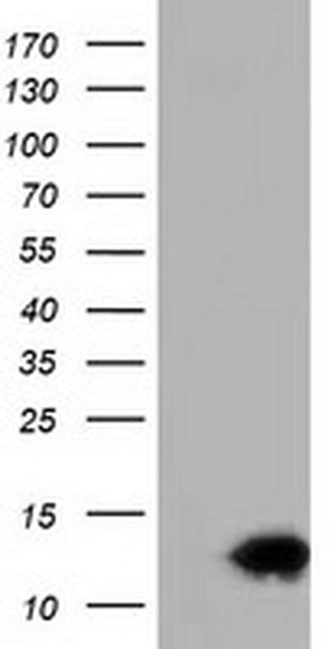 FSHB Mouse anti-Human, Clone: OTI4D12, liquid, TrueMAB  100 µL; Unconjugated