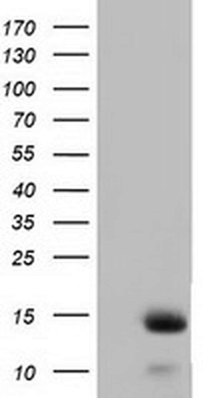 FSHB Mouse anti-Human, Clone: OTI2A6, liquid, TrueMAB  100 µL; Unconjugated