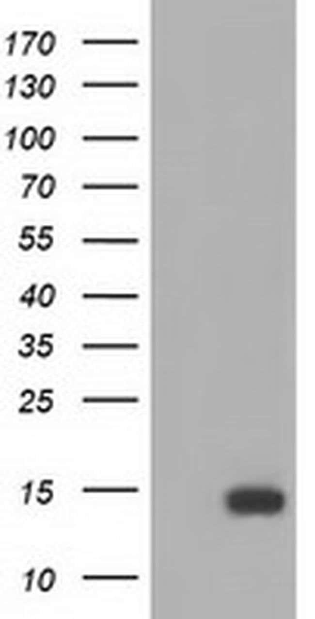 FSHB Mouse anti-Human, Clone: OTI2G9, liquid, TrueMAB  100 µL; Unconjugated