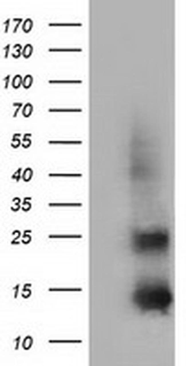 FSHB Mouse anti-Human, Clone: OTI3A9, liquid, TrueMAB  100 µL; Unconjugated