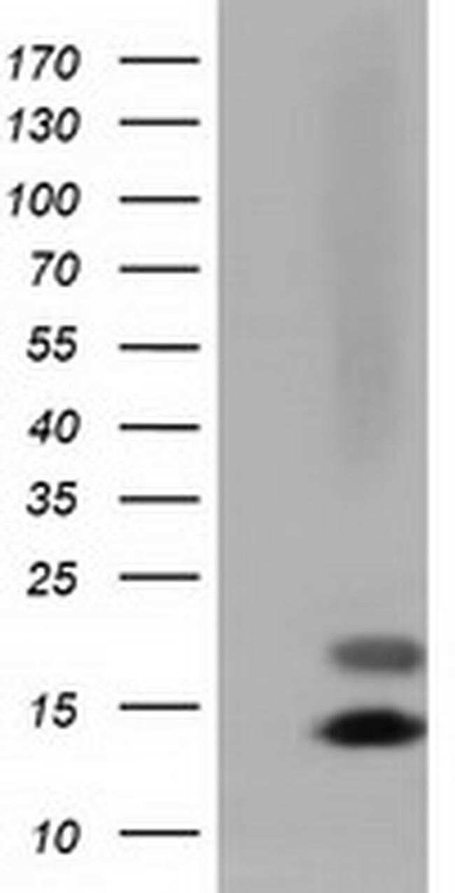 FSHB Mouse anti-Human, Clone: OTI4B9, liquid, TrueMAB  100 µL; Unconjugated