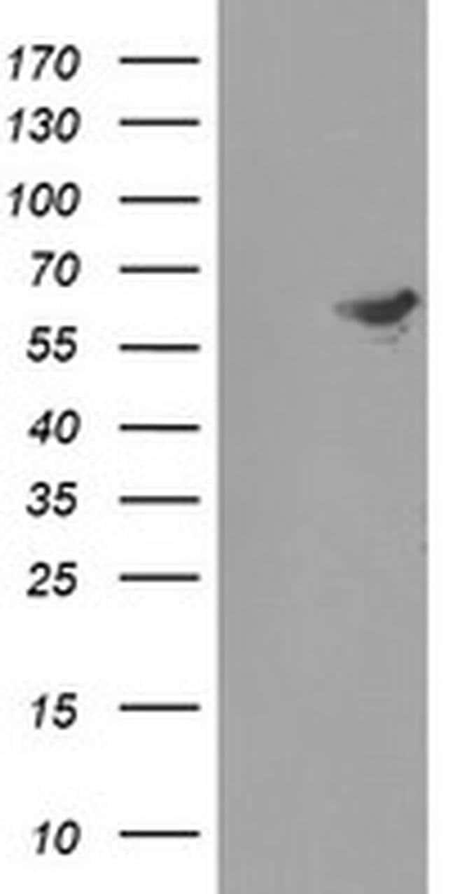 FTCD Mouse anti-Human, Clone: OTI4C3, liquid, TrueMAB  100 µL; Unconjugated