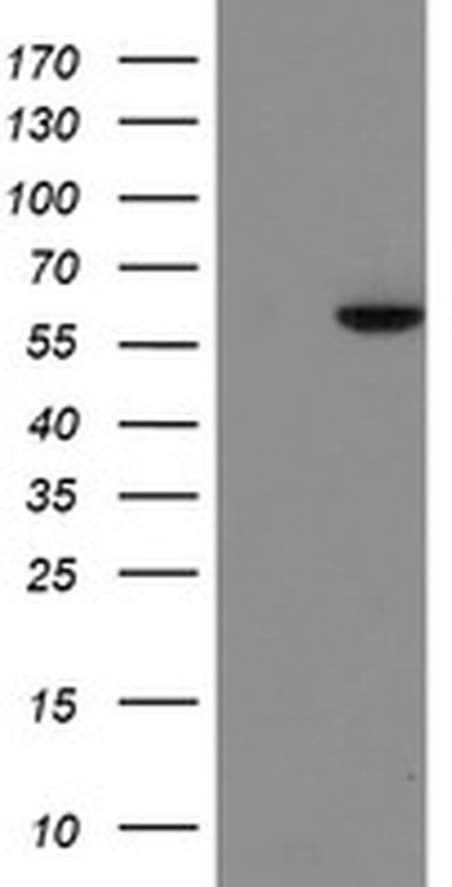 FTCD Mouse anti-Human, Clone: OTI4A1, liquid, TrueMAB  100 µL; Unconjugated