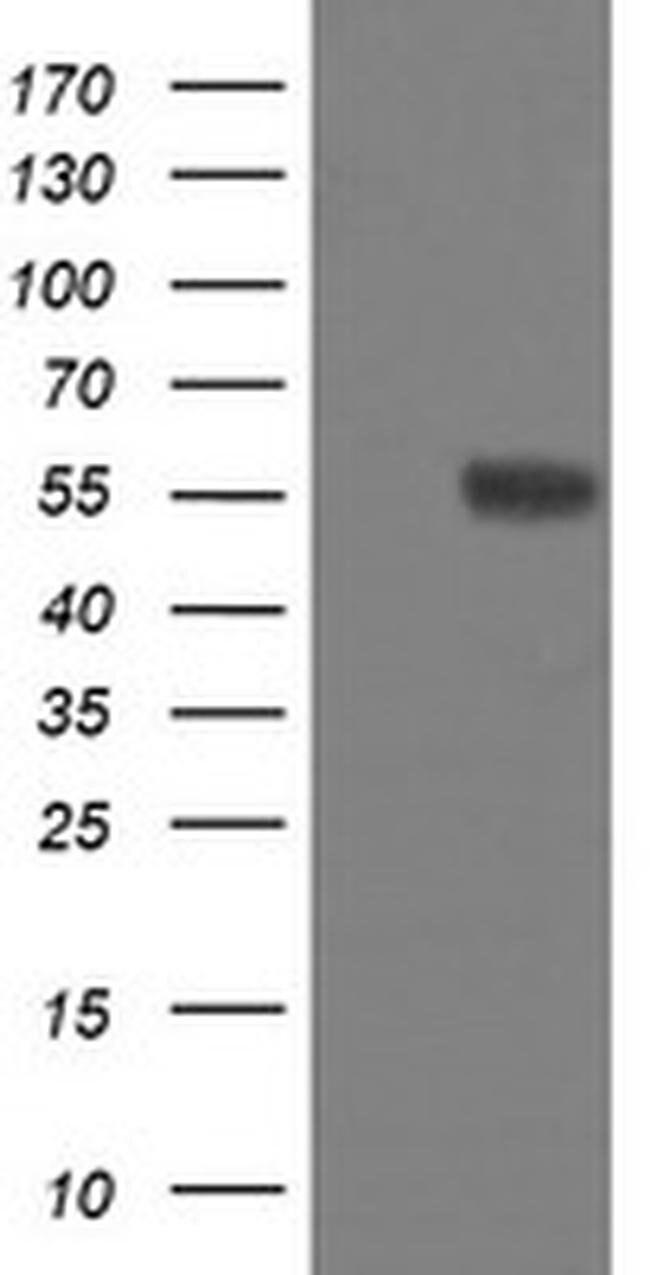 FTCD Mouse anti-Human, Clone: OTI8F12, liquid, TrueMAB  100 µL; Unconjugated