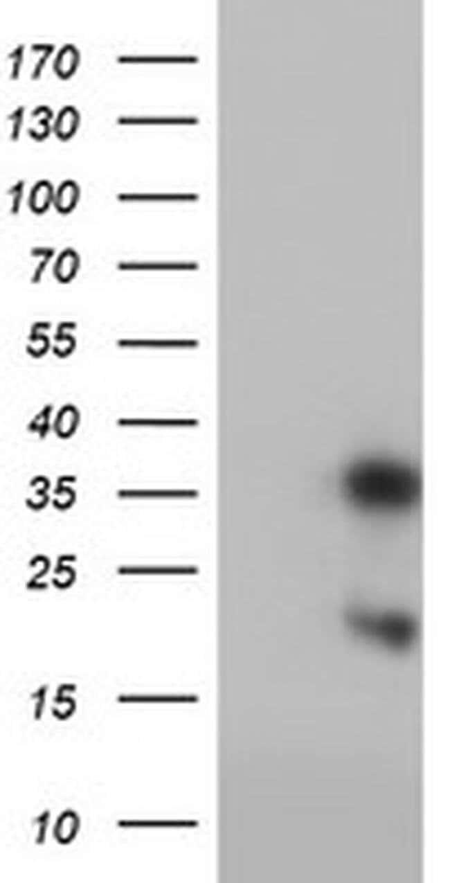 FXN Mouse anti-Human, Clone: OTI1C12, liquid, TrueMAB  100 µL; Unconjugated