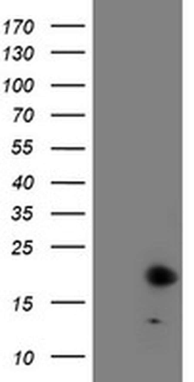 FXN Mouse anti-Human, Clone: OTI1F2, liquid, TrueMAB  100 µL; Unconjugated