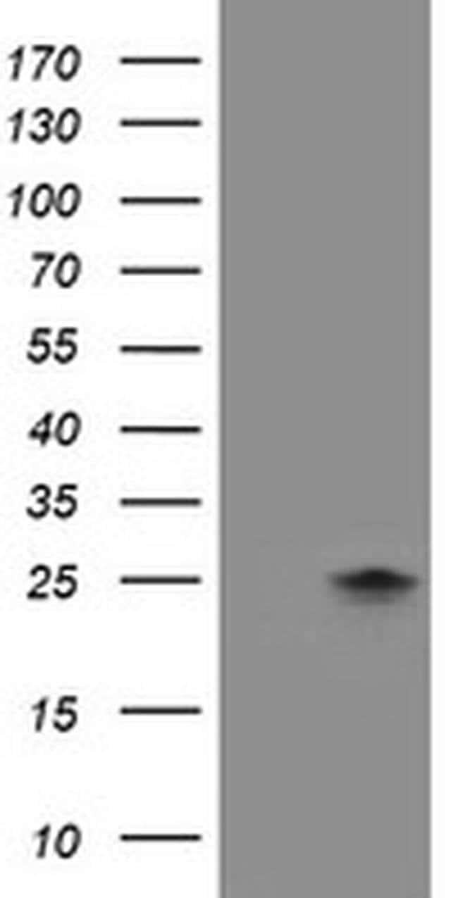 FXN Mouse anti-Human, Clone: OTI3B6, liquid, TrueMAB  100 µL; Unconjugated