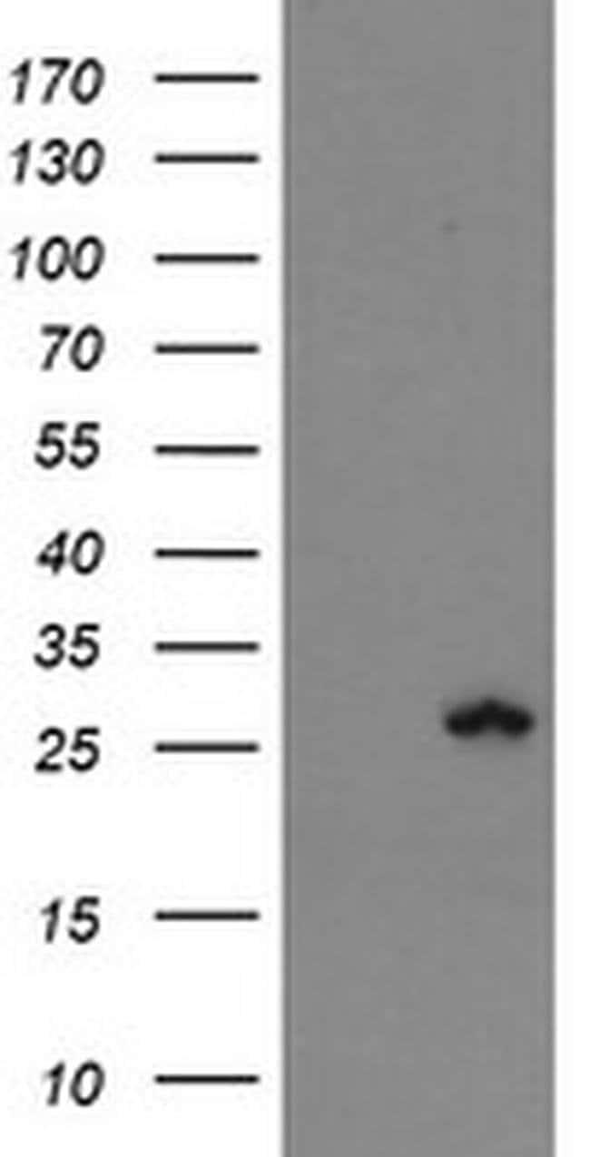 FXN Mouse anti-Human, Clone: OTI3C7, liquid, TrueMAB  100 µL; Unconjugated