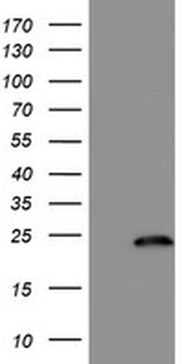 FXN Mouse anti-Human, Clone: OTI4G4, liquid, TrueMAB  100 µL; Unconjugated