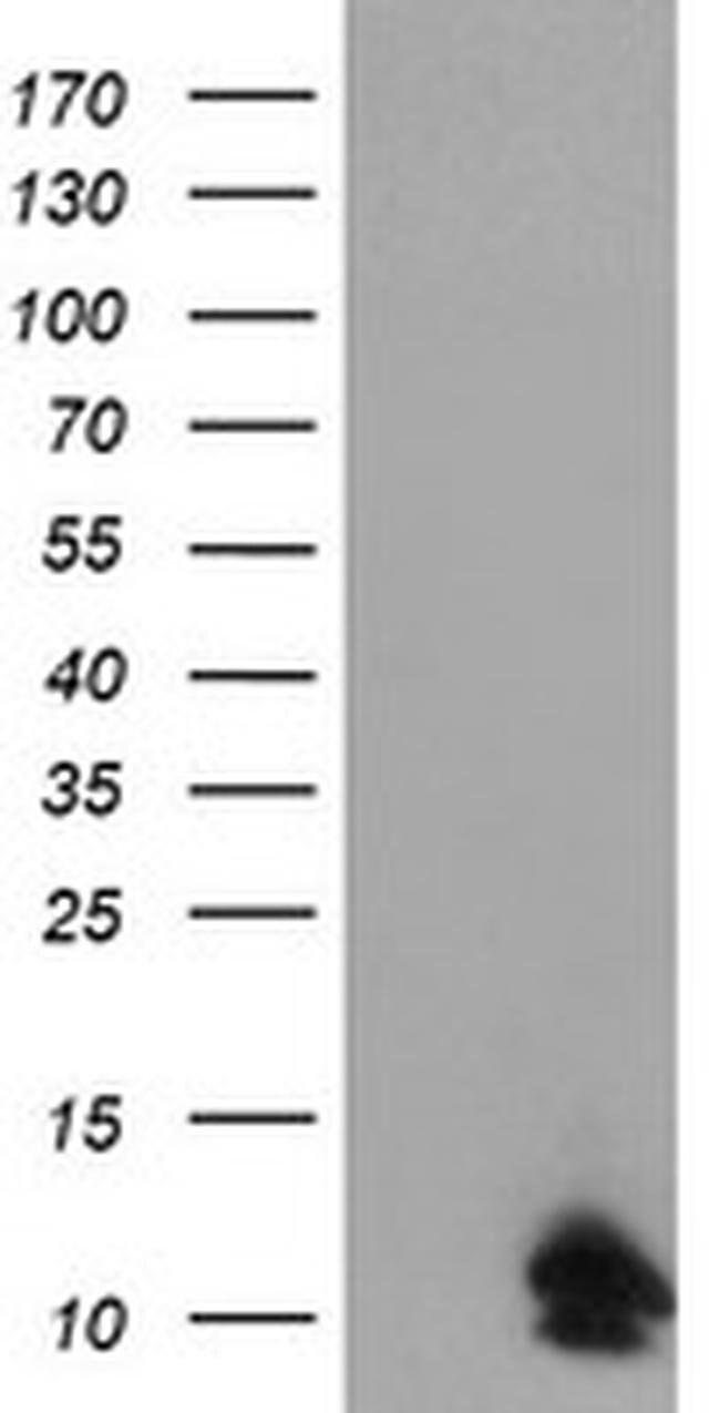 FXYD3 Mouse anti-Human, Clone: OTI1A8, liquid, TrueMAB  100 µL; Unconjugated