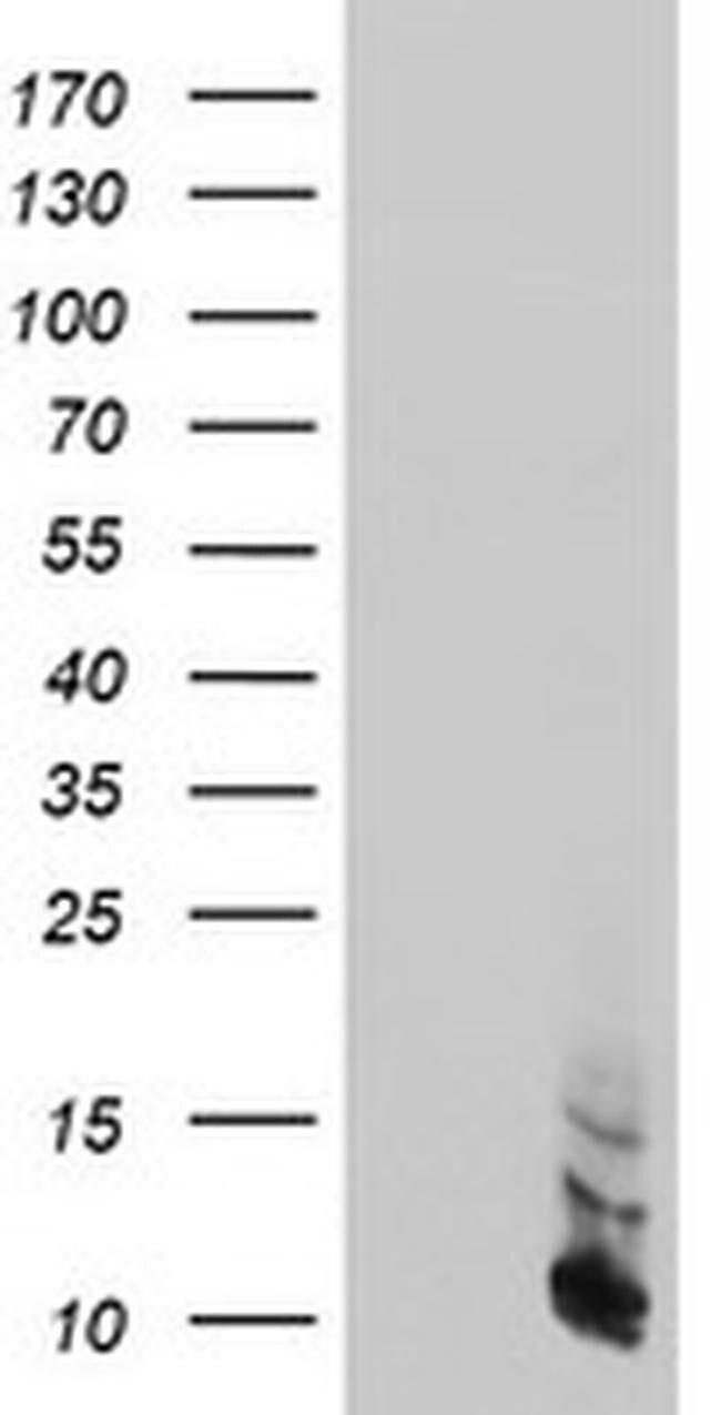 FXYD3 Mouse anti-Human, Clone: OTI4E3, liquid, TrueMAB  100 µL; Unconjugated