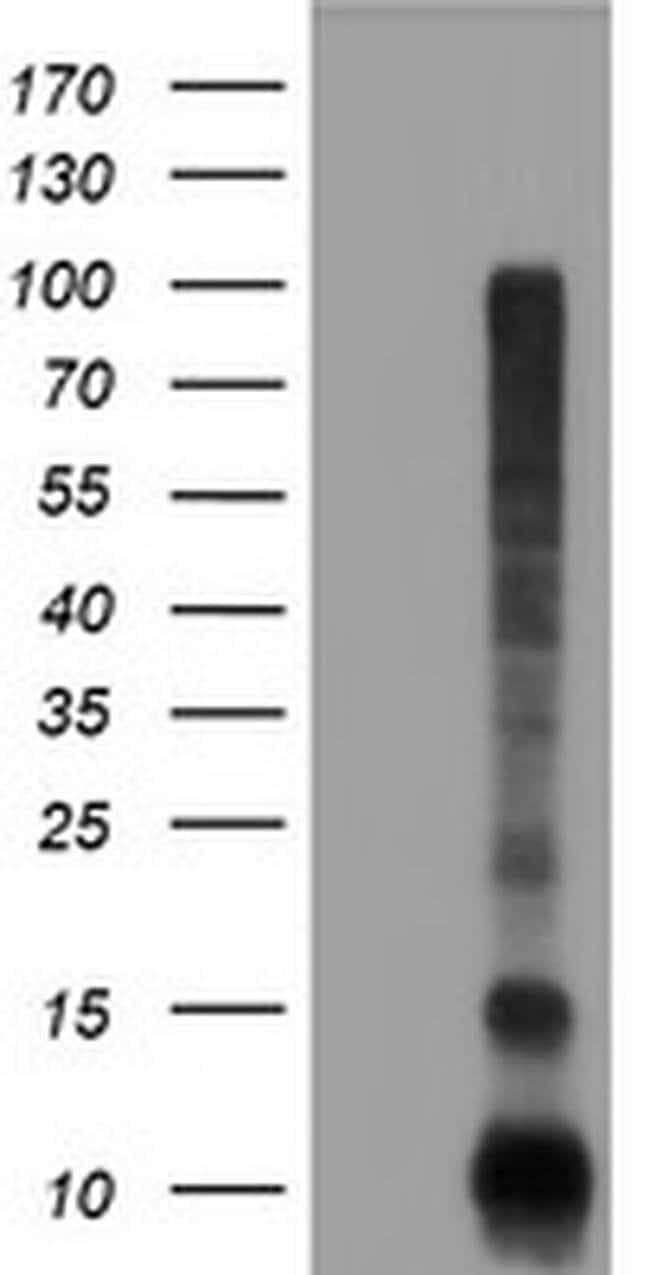 FXYD3 Mouse anti-Human, Clone: OTI1E8, liquid, TrueMAB  100 µL; Unconjugated
