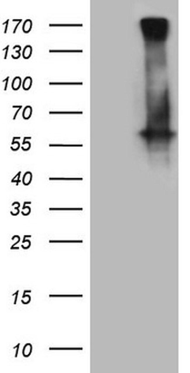 GABRA5 Mouse anti-Human, Clone: OTI3H7, lyophilized, TrueMAB  100 µg;