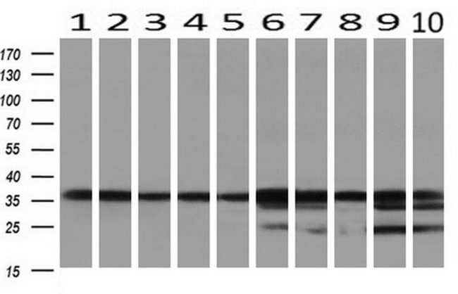 GALE Mouse anti-Canine, Human, Rat, Clone: OTI1C4, liquid, TrueMAB  100