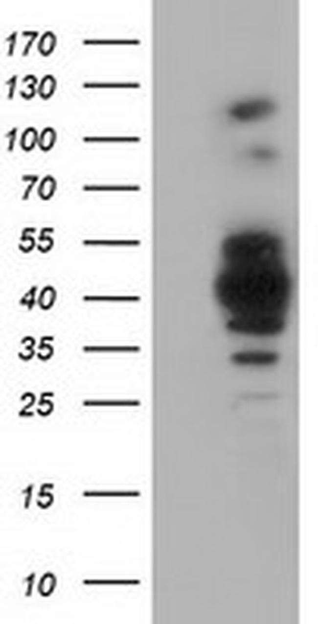 GAS7 Mouse anti-Canine, Human, Rat, Clone: OTI2F6, liquid, TrueMAB  100