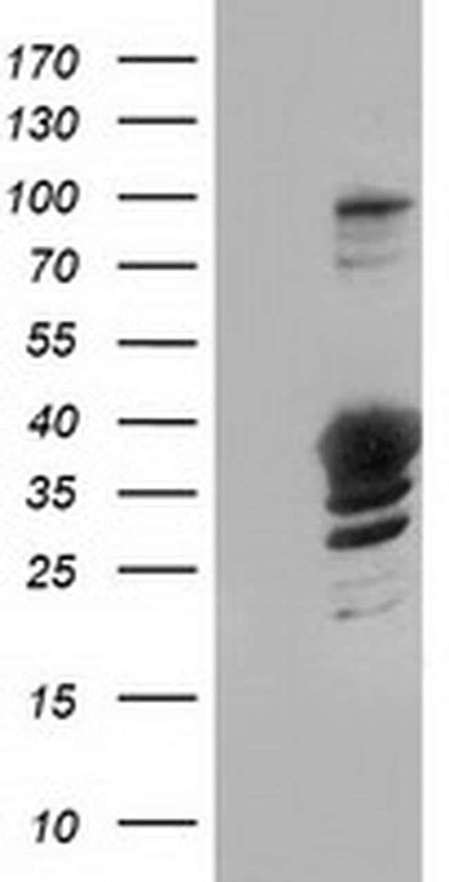 GAS7 Mouse anti-Human, Clone: OTI9H6, liquid, TrueMAB  100 µL; Unconjugated