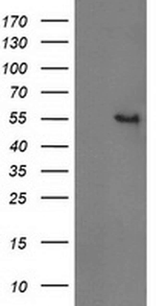 GBA3 Mouse anti-Human, Clone: OTI1F1, liquid, TrueMAB  100 µL; Unconjugated