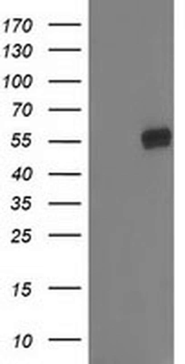 GBA3 Mouse anti-Human, Clone: OTI4F10, liquid, TrueMAB  100 µL; Unconjugated