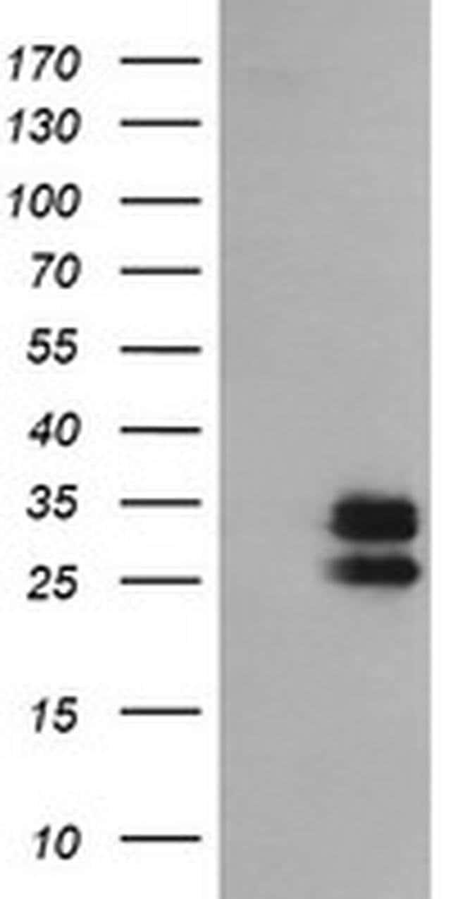 GBAS Mouse anti-Human, Clone: OTI1B2, liquid, TrueMAB  100 µL; Unconjugated