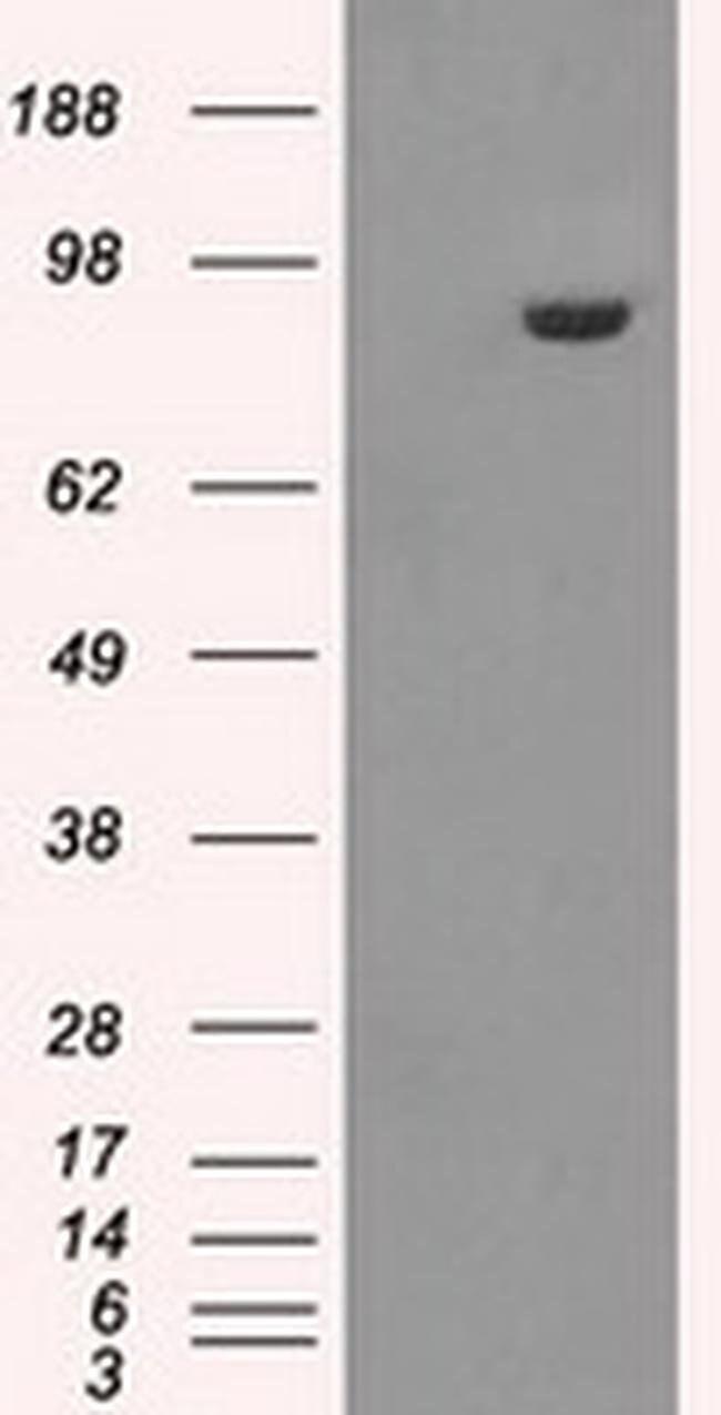 GBE1 Mouse anti-Human, Clone: OTI5B7, liquid, TrueMAB  100 µL; Unconjugated