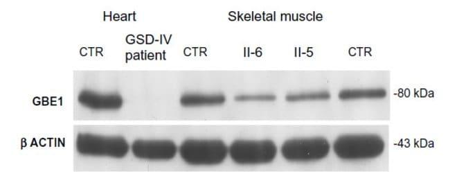 GBE1 Mouse anti-Human, Clone: OTI4D9, liquid, TrueMAB  100 µL; Unconjugated