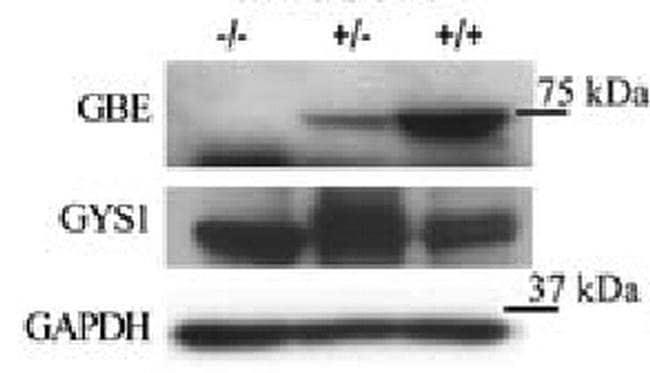 GBE1 Mouse anti-Human, Clone: OTI1D11, liquid, TrueMAB  100 µL; Unconjugated
