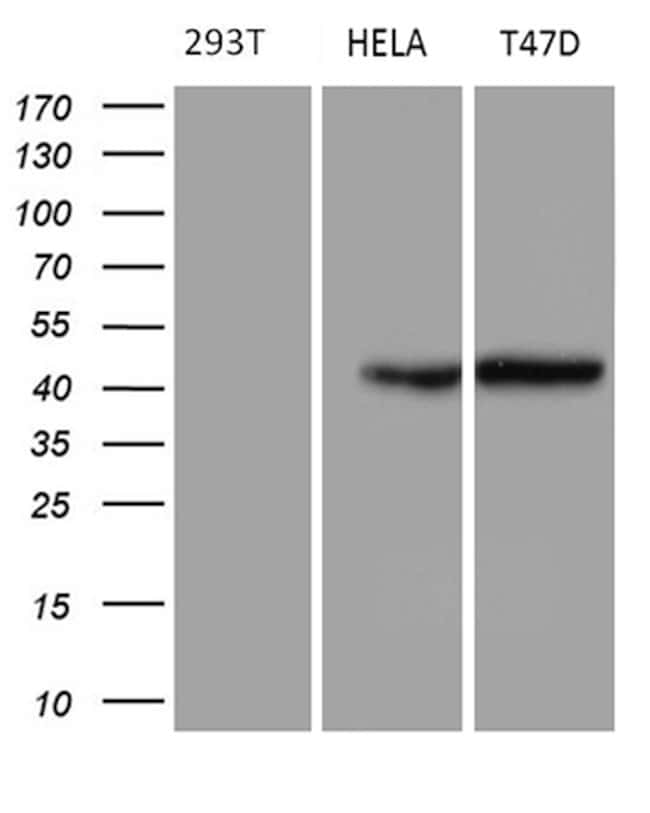 GC Mouse anti-Human, Clone: OTI2A1, lyophilized, TrueMAB  100 µg;