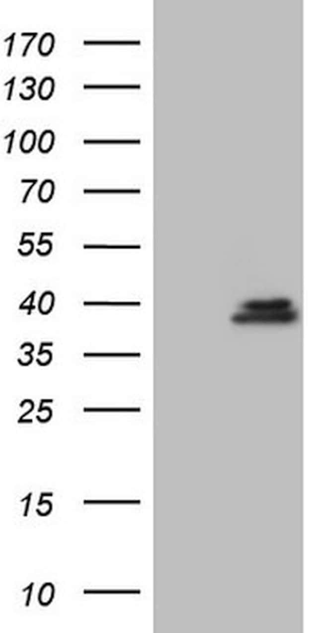 GEMIN8 Mouse anti-Human, Clone: OTI2F5, lyophilized, TrueMAB  100 µg;