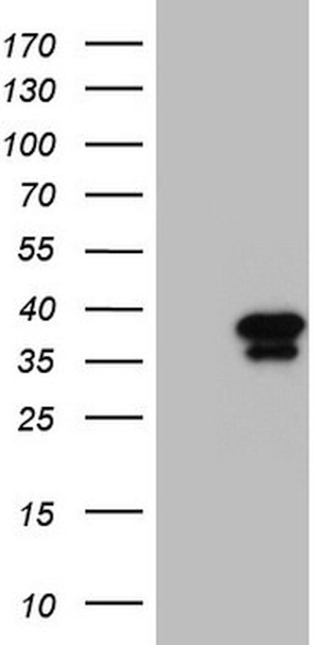 GEMIN8 Mouse anti-Human, Clone: OTI4F8, lyophilized, TrueMAB  100 µg;