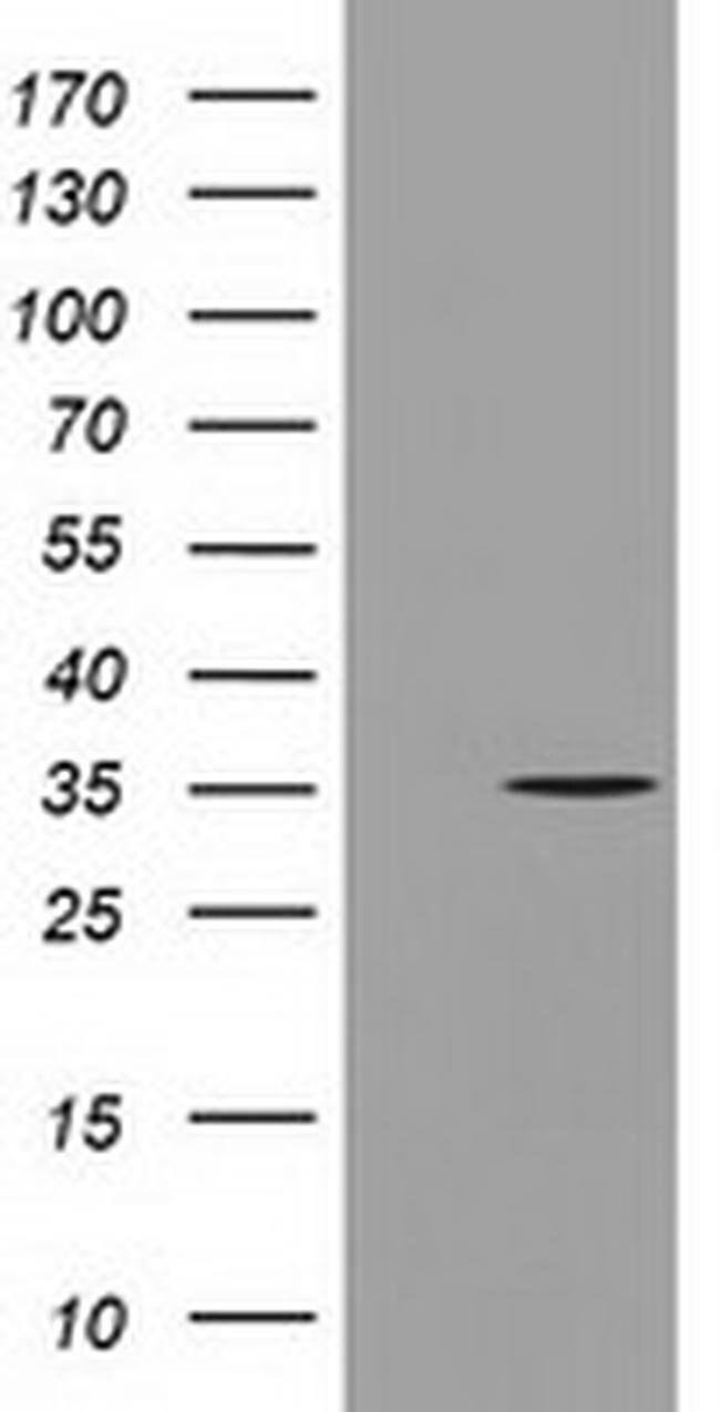 GGPS1 Mouse anti-Human, Clone: OTI3F9, liquid, TrueMAB  100 µL; Unconjugated
