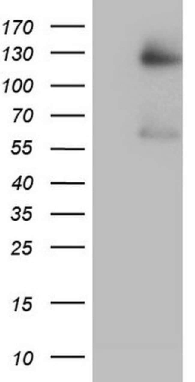 GLI1 Mouse anti-Human, Clone: OTI1A8, lyophilized, TrueMAB  100 µg;