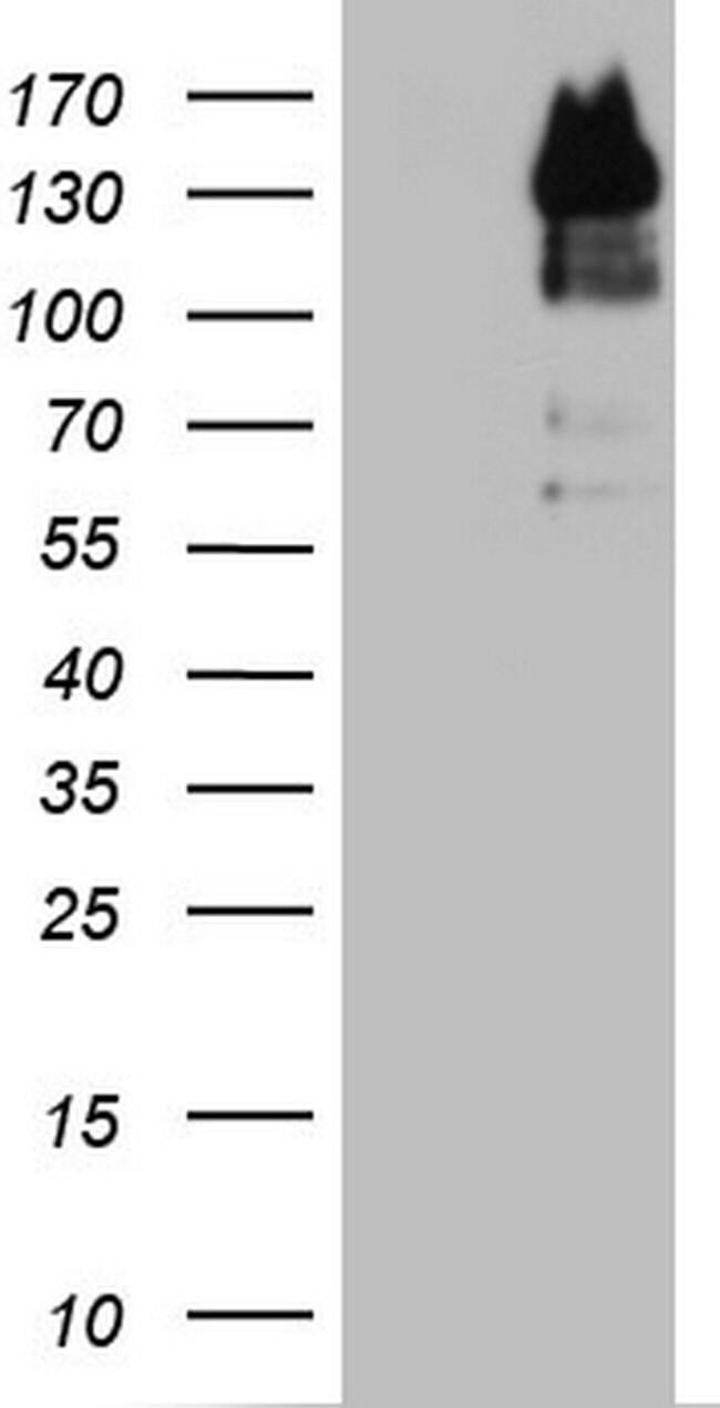 GLI1 Mouse anti-Human, Clone: OTI1F1, lyophilized, TrueMAB  100 µg;