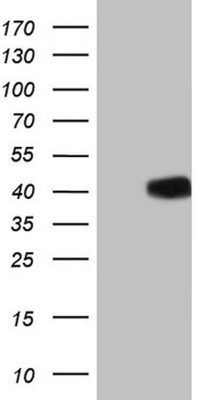 GLI4 Mouse anti-Human, Clone: OTI3D5, lyophilized, TrueMAB  100 µg;