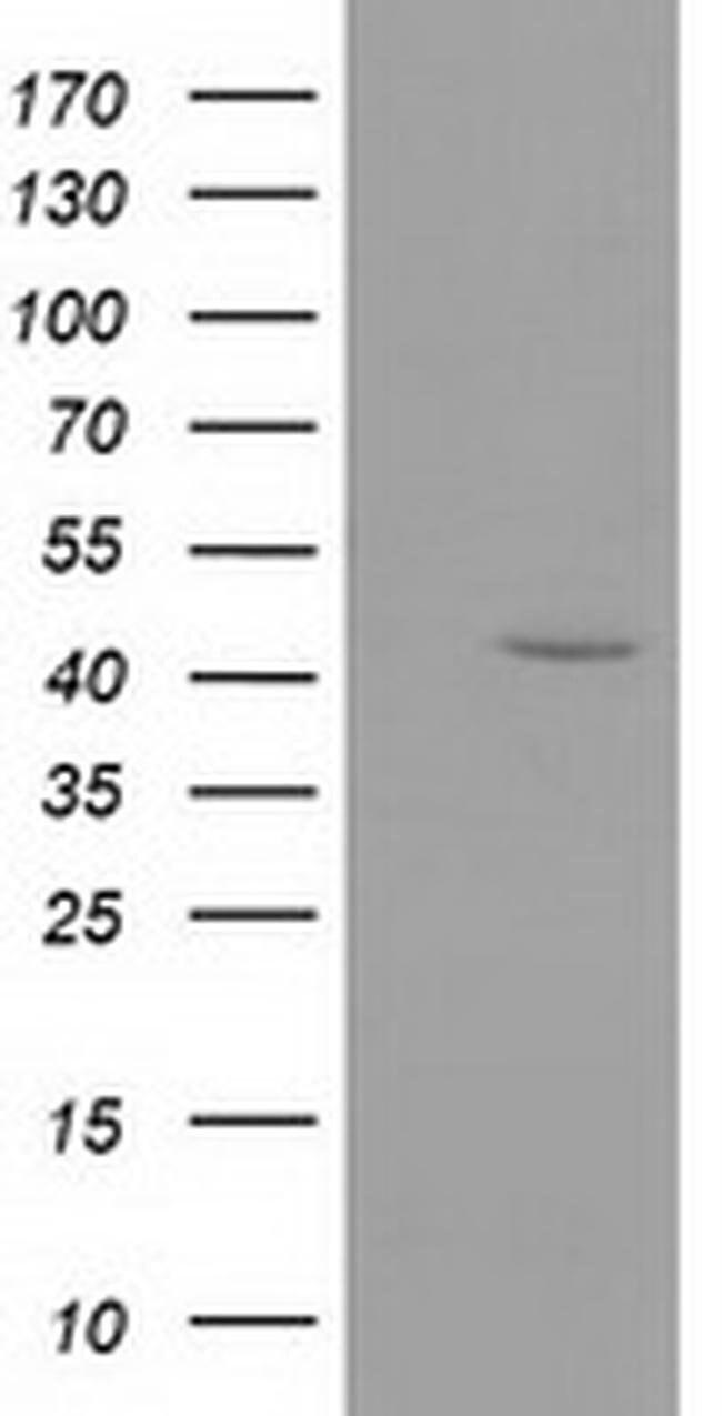GMDS Mouse anti-Human, Clone: OTI2A1, liquid, TrueMAB  100 µL; Unconjugated