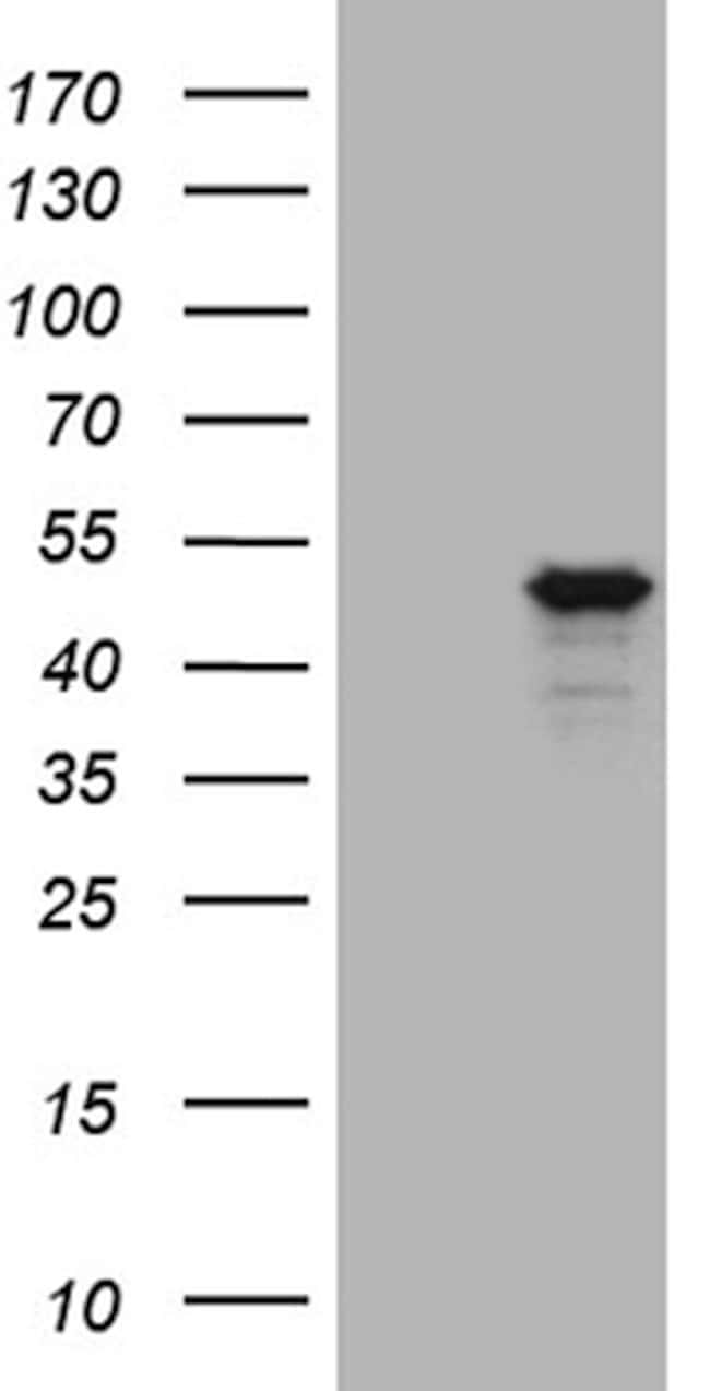 GNA15 Mouse anti-Human, Clone: OTI1D3, lyophilized, TrueMAB  100 µg;
