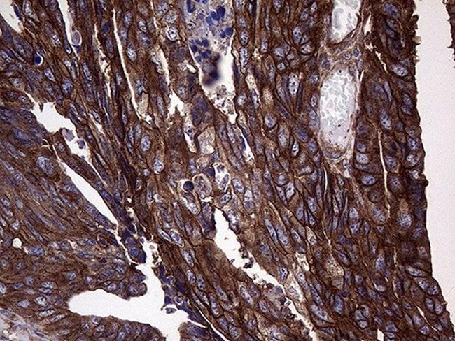 GNAS Mouse anti-Human, Clone: OTI7H4, lyophilized, TrueMAB  100 µg;