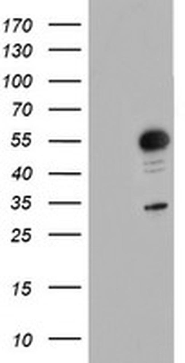 GOLM1 Mouse anti-Human, Clone: OTI3D7, liquid, TrueMAB  100 µL; Unconjugated