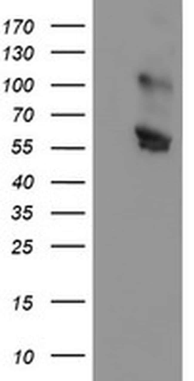 GOLM1 Mouse anti-Human, Clone: OTI6C9, liquid, TrueMAB  100 µL; Unconjugated