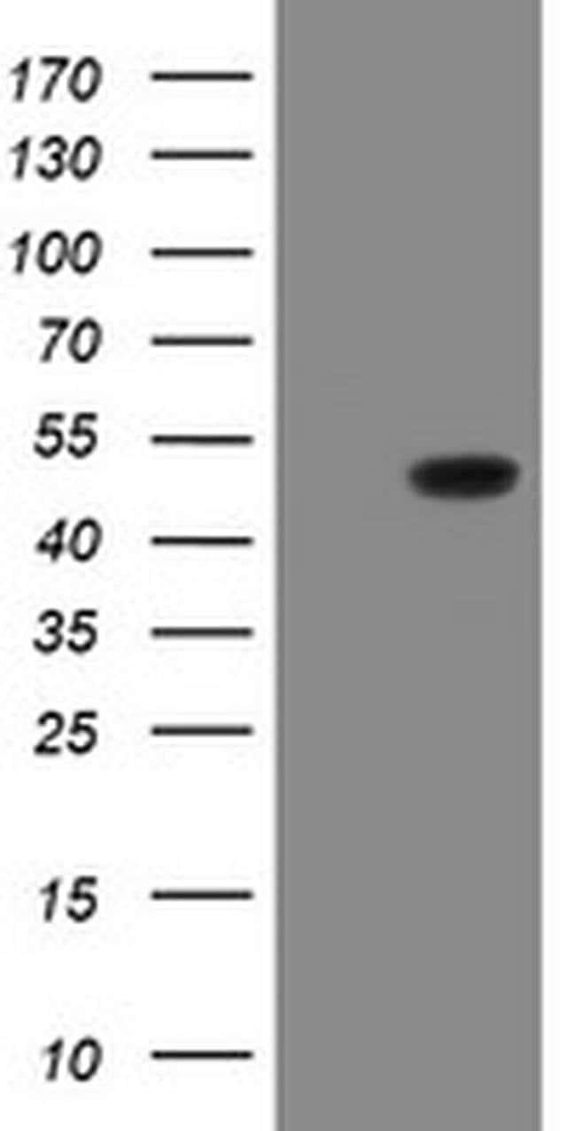 GORAB Mouse anti-Human, Clone: OTI4F11, liquid, TrueMAB  100 µL; Unconjugated