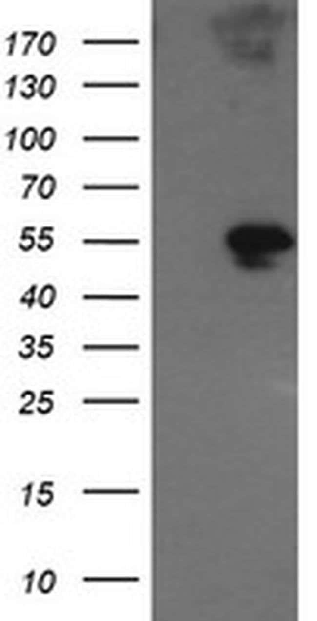 GORAB Mouse anti-Human, Clone: OTI2E6, liquid, TrueMAB  100 µL; Unconjugated