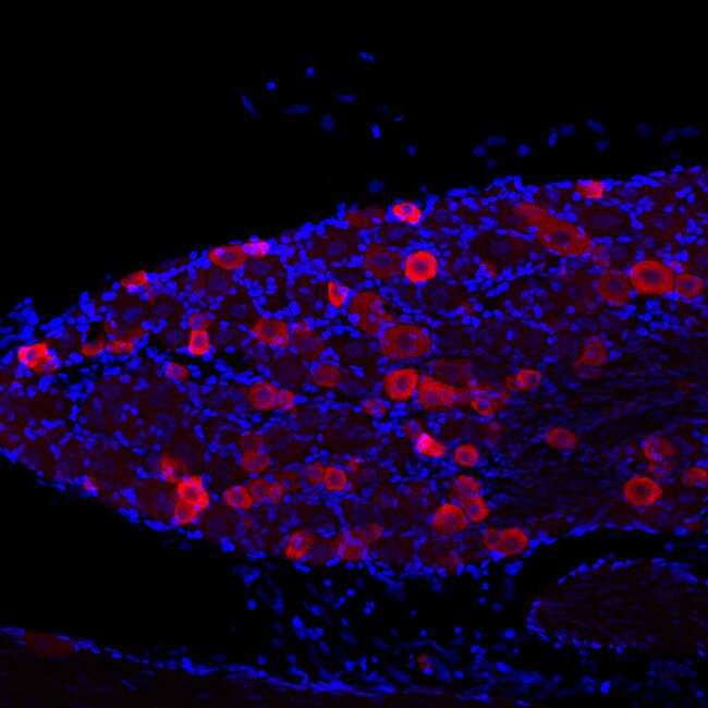 VR1 C-terminus (TRPV1) Guinea Pig anti-Human, Rat, Polyclonal, Neuromics:Antibodies:Primary