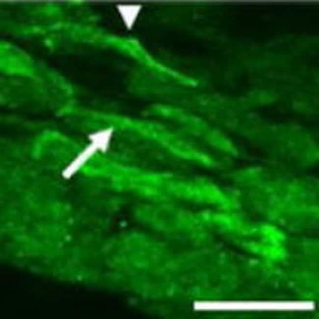 PGP9.5 175-191 Guinea Pig anti-Human, Mouse, Rat, Polyclonal, Neuromics:Antibodies:Primary