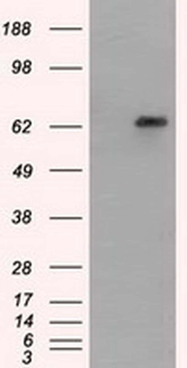 GPI Mouse anti-Human, Clone: OTI8G7, liquid, TrueMAB  100 µL; Unconjugated