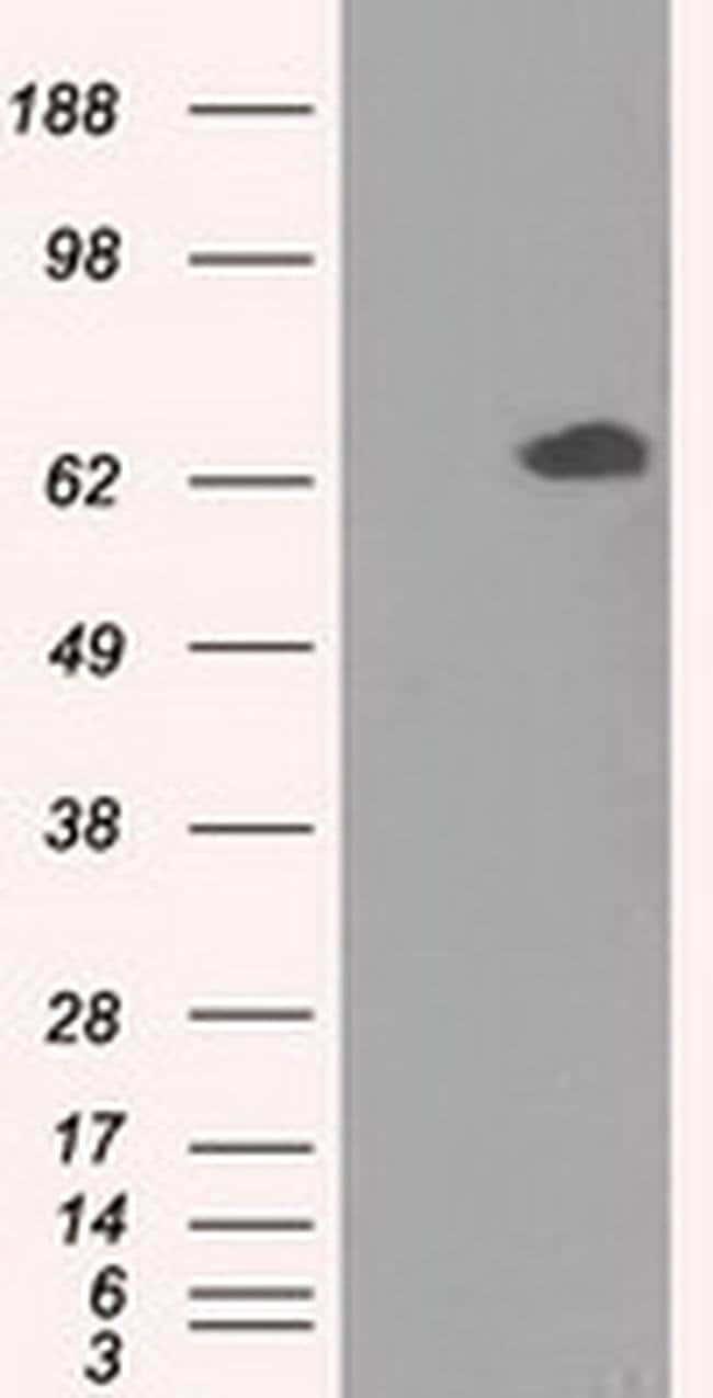 GPI Mouse anti-Human, Clone: OTI7G10, liquid, TrueMAB  100 µL; Unconjugated