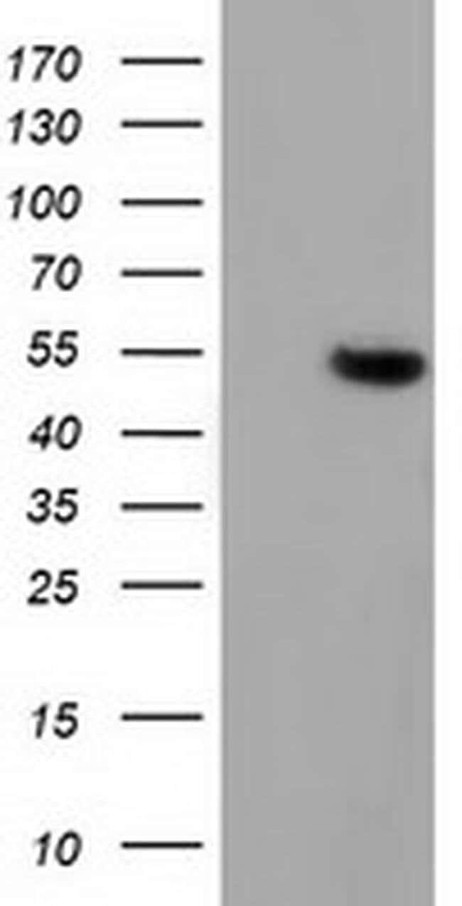 GSS Mouse anti-Human, Clone: OTI1H3, liquid, TrueMAB  100 µL; Unconjugated