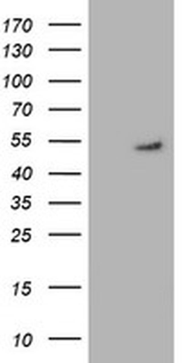GSS Mouse anti-Human, Clone: OTI1B8, liquid, TrueMAB  100 µL; Unconjugated