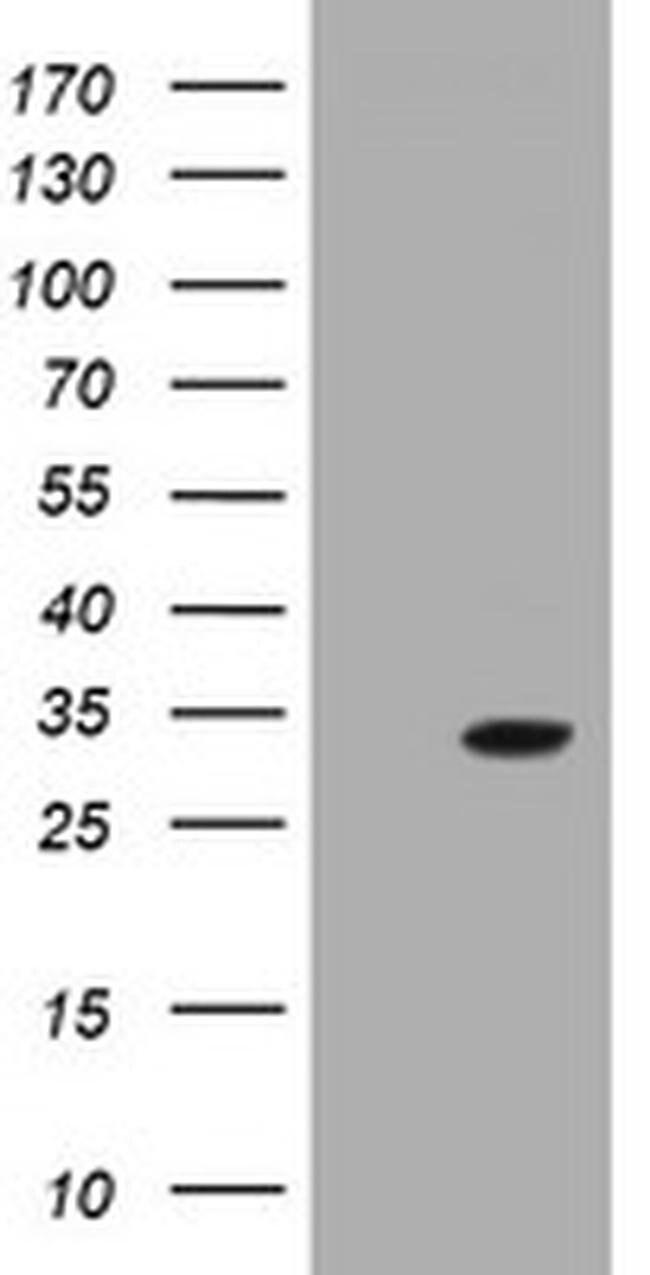 GSTO2 Mouse anti-Human, Clone: OTI5E7, liquid, TrueMAB  100 µL; Unconjugated